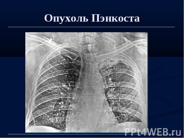 Опухоль Пэнкоста