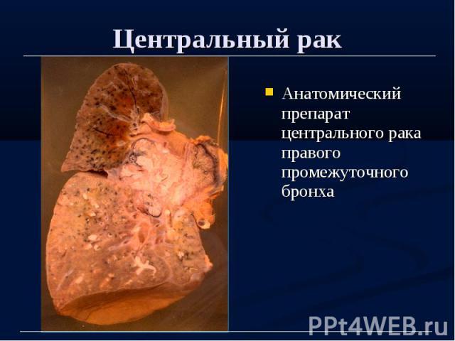 Центральный рак Анатомический препарат центрального рака правого промежуточного бронха