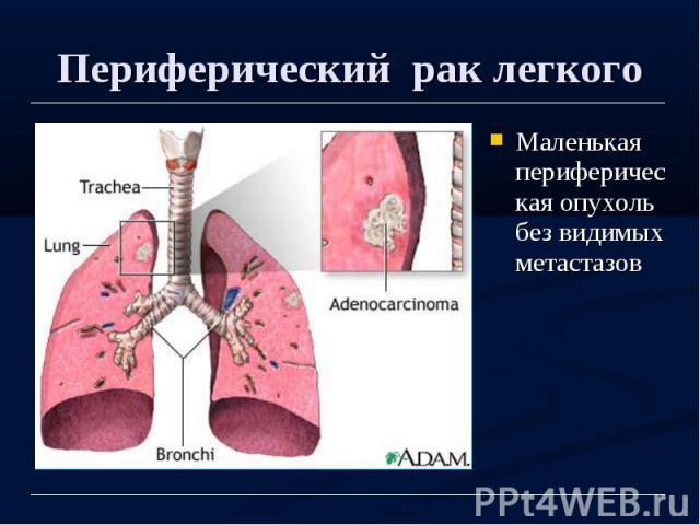 Периферический рак легкого Маленькая периферическая опухоль без видимых метастазов