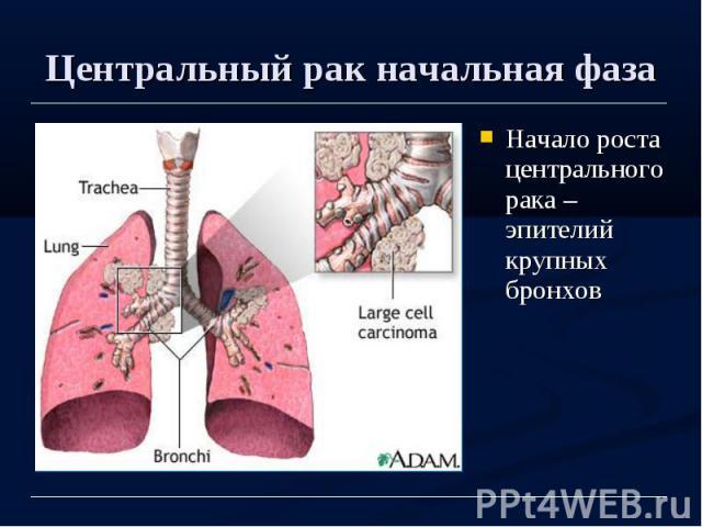 Центральный рак начальная фаза Начало роста центрального рака – эпителий крупных бронхов