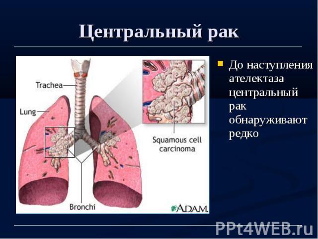Центральный рак До наступления ателектаза центральный рак обнаруживают редко