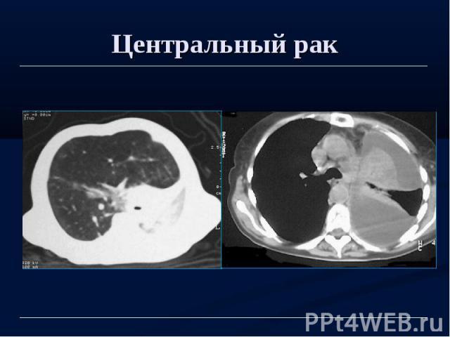 Центральный рак