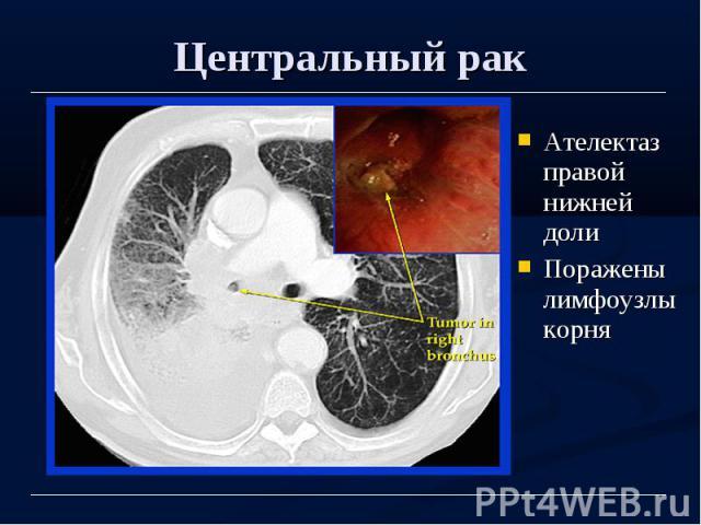 Центральный рак Ателектаз правой нижней доли Поражены лимфоузлы корня