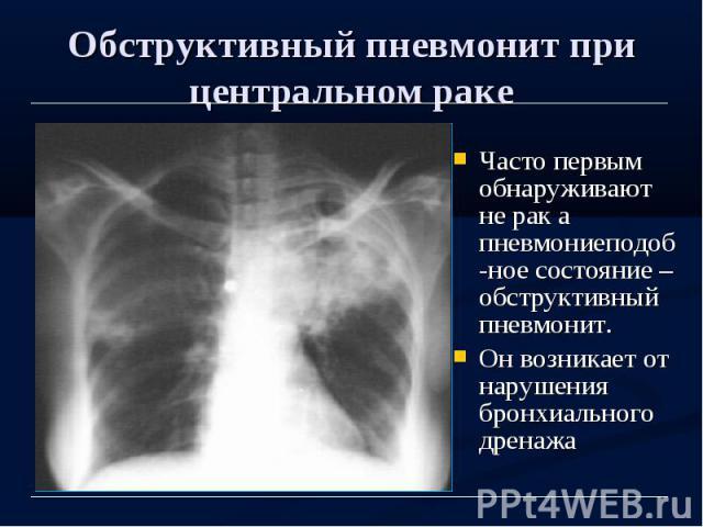 Обструктивный пневмонит при центральном раке Часто первым обнаруживают не рак а пневмониеподоб-ное состояние – обструктивный пневмонит. Он возникает от нарушения бронхиального дренажа
