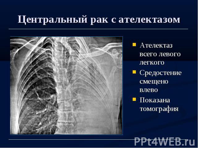 Центральный рак с ателектазом Ателектаз всего левого легкого Средостение смещено влево Показана томография