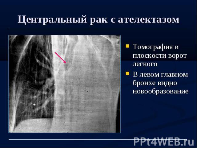 Центральный рак с ателектазом Томография в плоскости ворот легкого В левом главном бронхе видно новообразование