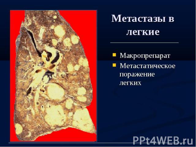 Метастазы в легкие Макропрепарат Метастатическое поражение легких