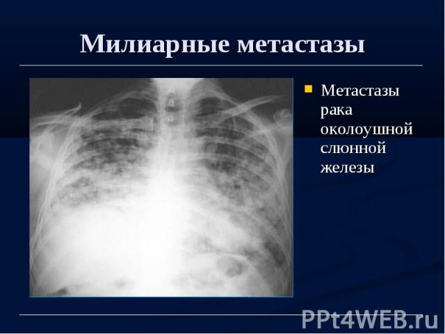 Милиарные метастазы Метастазы рака околоушной слюнной железы