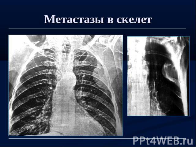 Метастазы в скелет
