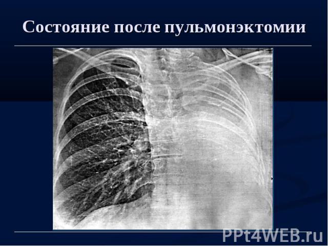 Состояние после пульмонэктомии