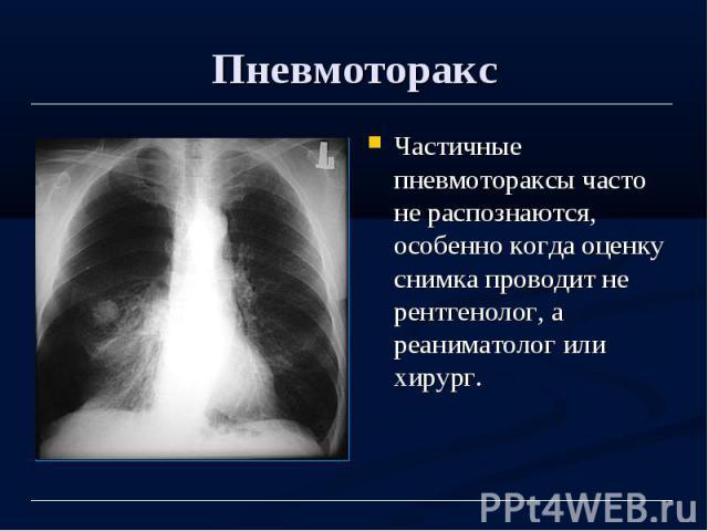 Пневмоторакс Частичные пневмотораксы часто не распознаются, особенно когда оценку снимка проводит не рентгенолог, а реаниматолог или хирург.