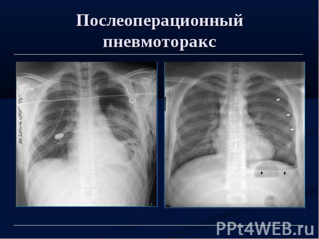 Послеоперационный пневмоторакс