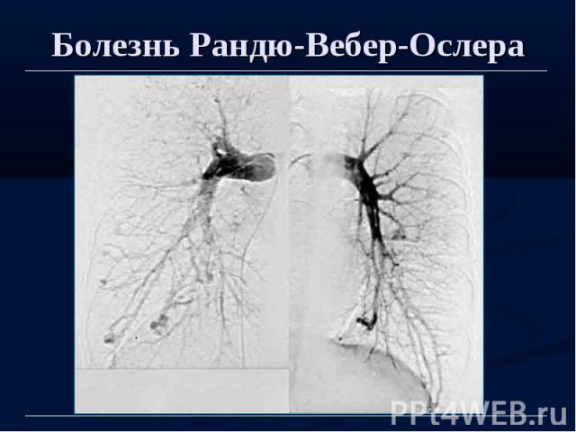 Болезнь Рандю-Вебер-Ослера