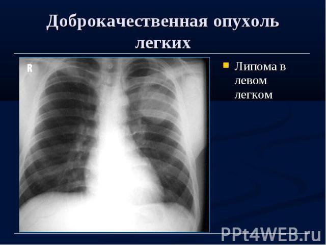 Доброкачественная опухоль легких Липома в левом легком