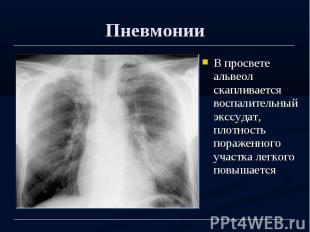 Пневмонии В просвете альвеол скапливается воспалительный экссудат, плотность пор