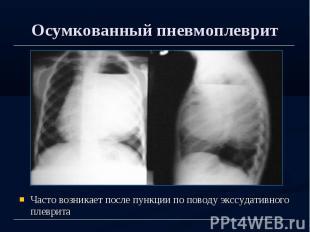 Осумкованный пневмоплеврит Часто возникает после пункции по поводу экссудативног