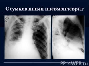 Осумкованный пневмоплеврит