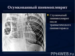 Осумкованный пневмоплеврит Ступенчатый пневмоплеврит после травматического пневм