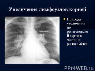 Увеличение лимфоузлов корней Природа увеличения по рентгеновской картине часто н