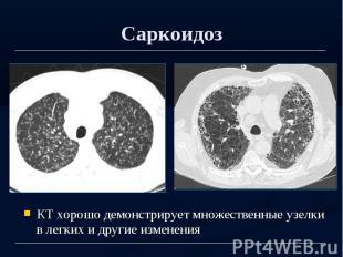 Саркоидоз КТ хорошо демонстрирует множественные узелки в легких и другие изменен