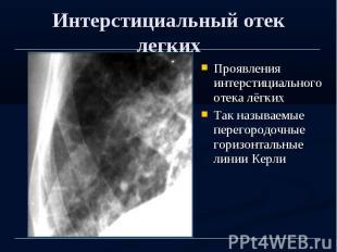 Интерстициальный отек легких Проявления интерстициального отека лёгких Так назыв
