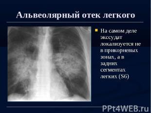 Альвеолярный отек легкого На самом деле экссудат локализуется не в прикорневых з