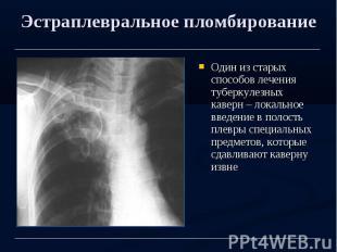 Эстраплевральное пломбирование Один из старых способов лечения туберкулезных кав