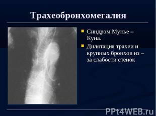 Трахеобронхомегалия Синдром Мунье – Куна. Дилятация трахеи и крупных бронхов из