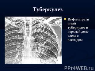 Туберкулез Инфильтративный туберкулез в верхней доле слева с распадом