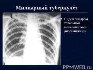 Милиарный туберкулёз Виден синдром тотальной мелкоочаговой диссеминации