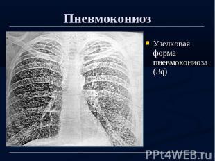 Пневмокониоз Узелковая форма пневмокониоза (3q)