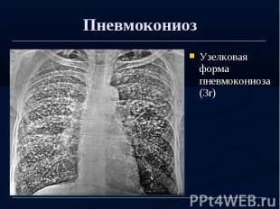 Пневмокониоз Узелковая форма пневмокониоза (3r)