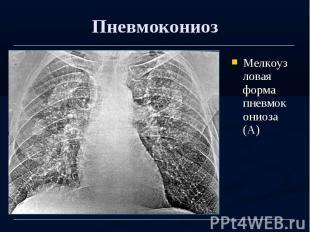 Пневмокониоз Мелкоузловая форма пневмокониоза (А)