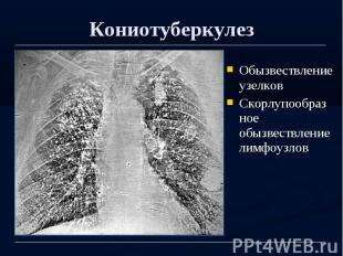 Кониотуберкулез Обызвествление узелков Скорлупообразное обызвествление лимфоузло