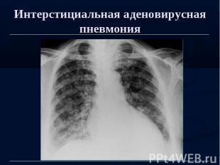 Интерстициальная аденовирусная пневмония