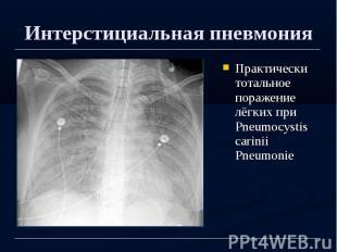 Интерстициальная пневмония Практически тотальное поражение лёгких при Pneumocyst