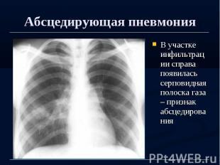 Абсцедирующая пневмония В участке инфильтрации справа появилась серповидная поло