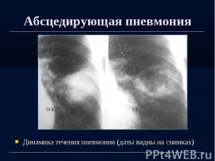 Абсцедирующая пневмония Динамика течения пневмонии (даты видны на снимках)
