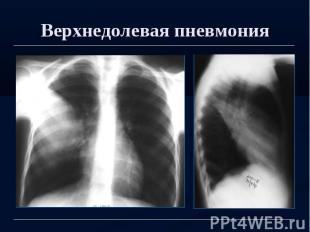 Верхнедолевая пневмония