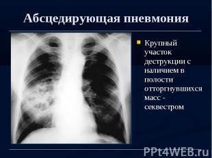 Абсцедирующая пневмония Крупный участок деструкции с наличием в полости отторгну