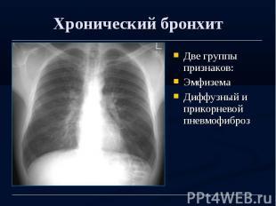 Хронический бронхит Две группы признаков: Эмфизема Диффузный и прикорневой пневм