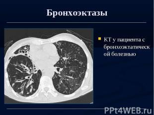 Бронхоэктазы КТ у пациента с бронхоэктатической болезнью