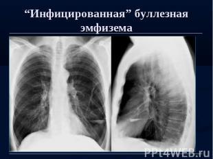 """""""Инфицированная"""" буллезная эмфизема"""