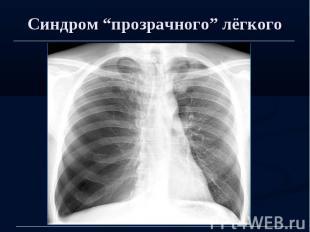 """Синдром """"прозрачного"""" лёгкого"""