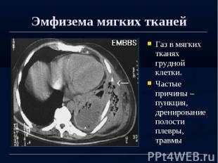 Эмфизема мягких тканей Газ в мягких тканях грудной клетки. Частые причины – пунк