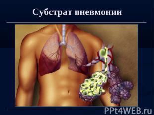 Субстрат пневмонии