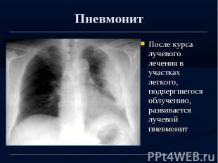 Пневмонит После курса лучевого лечения в участках легкого, подвергшегося облучен