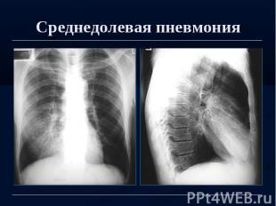 Среднедолевая пневмония