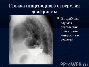 Грыжа пищеводного отверстия диафрагмы В подобных случаях обязательно применение
