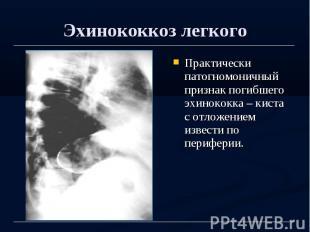 Эхинококкоз легкого Практически патогномоничный признак погибшего эхинококка – к